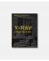 X-Ray Architecture